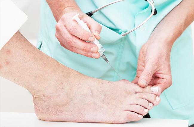 Você sabe quais são os cuidados necessários para a saúde do pé diabético?