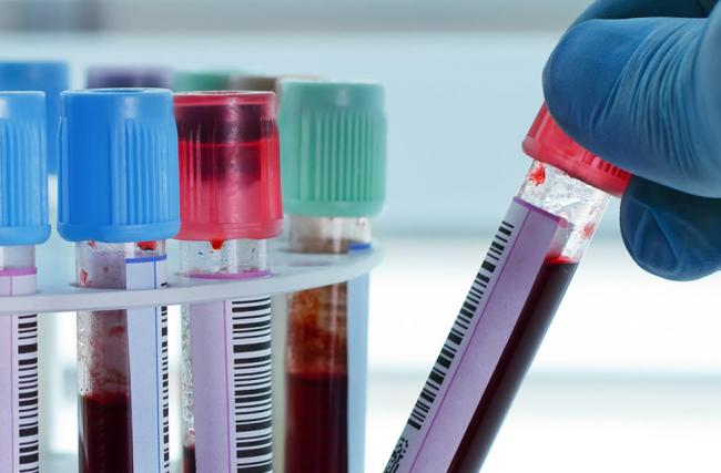 5 Mitos e Verdades sobre exames laboratoriais!